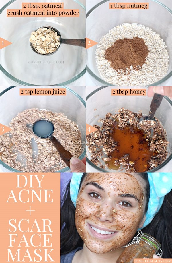 This face mask with honey and nutmeg will help you have a clear, pimple free skin and lighten acne scars. It's easy to make with just a few pantry ingredients!